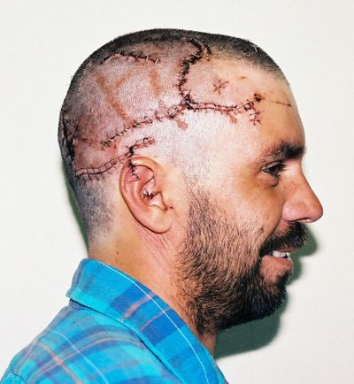After a 1992 grizzly bear attack, Terry Everard lost four units of blood and needed 250 stitches.
