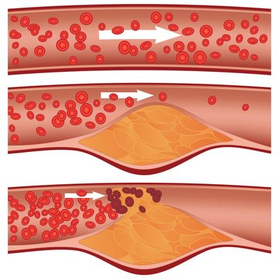 Atherosclerosis, or the narrowing of the arteries. (Tribune News Service)