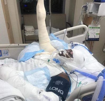 """Timiyah Landers, 12, is pictured in intensive care after reportedly setting herself on fire as part of the viral """"fire challenge,"""" in which people cover themselves in rubbing alcohol and set themselves on fire. (Courtesy photo)"""