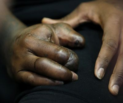 The hands of New York Giants defensive end Jason Pierre-Paul are seen as he speaks to reporters for the first time since injuring his right hand, in East Rutherford, N.J. (Julio Cortez / Associated Press)