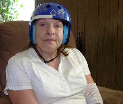 In this August 2013 photo, Yvonne Wallis, of Bayview, wears a helmet to protect her brain from further injury, after being victimized by a hammer attack on Dec. 19, 2010. (Herb Huseland/Bay Views blog photo)